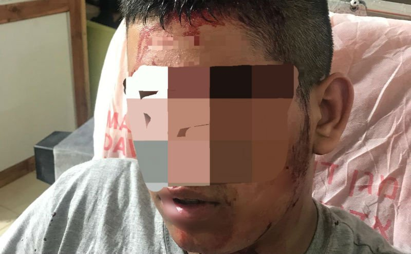 בנו של בעל חנות הרהיטים לאחר המקרה (צילום: משטרת ישראל)