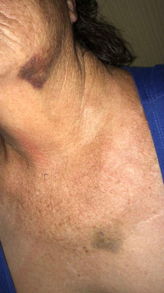 סימני האלימות על פניה של לורי עזריה